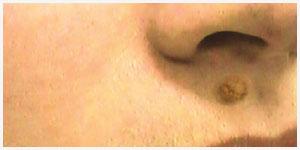 Флуконазол от грибка ногтей на ногах цена